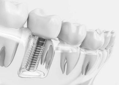 Dental Implants in Phoenix, AZ - AZ Dental