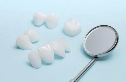 Dental Veneers in Phoenix, AZ - AZ Dental