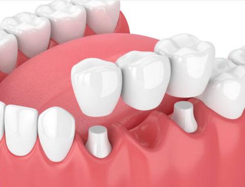 Dental Bridges in Phoenix, AZ - AZ Dental