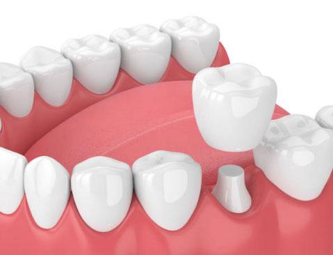 Dental Crowns in Phoenix, AZ - AZ Dental